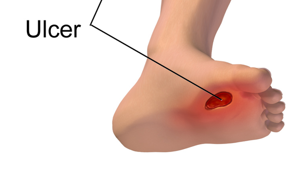 9 Simple tips to prevent diabetic leg ulcers.